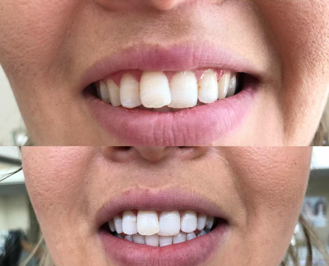 avant-après blanchiment dentaire lumière led