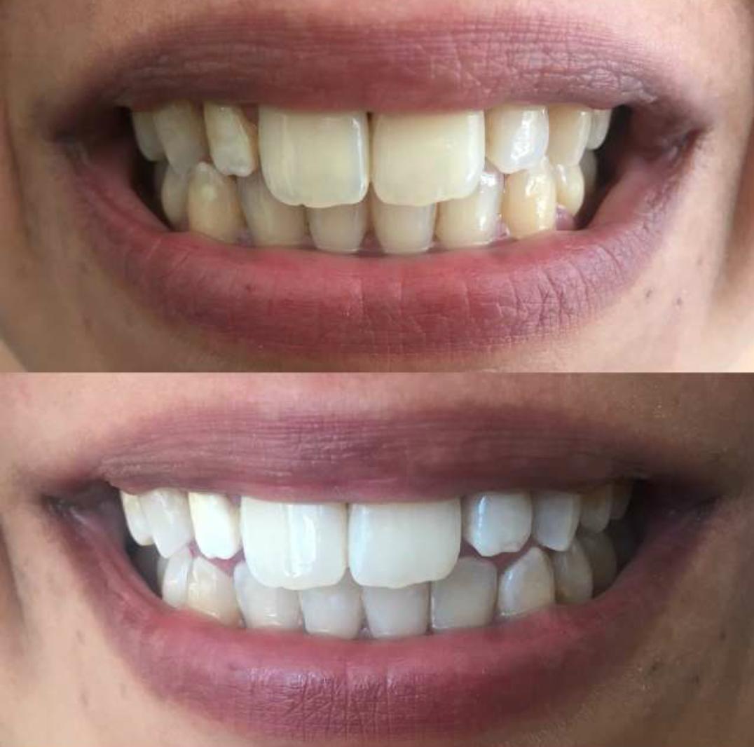 avant-après blanchiment dentaire photobiomodulation