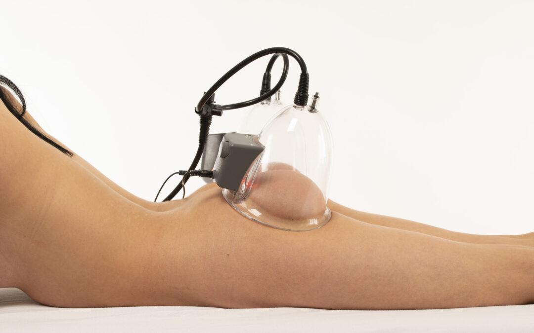 Vacuum thérapie