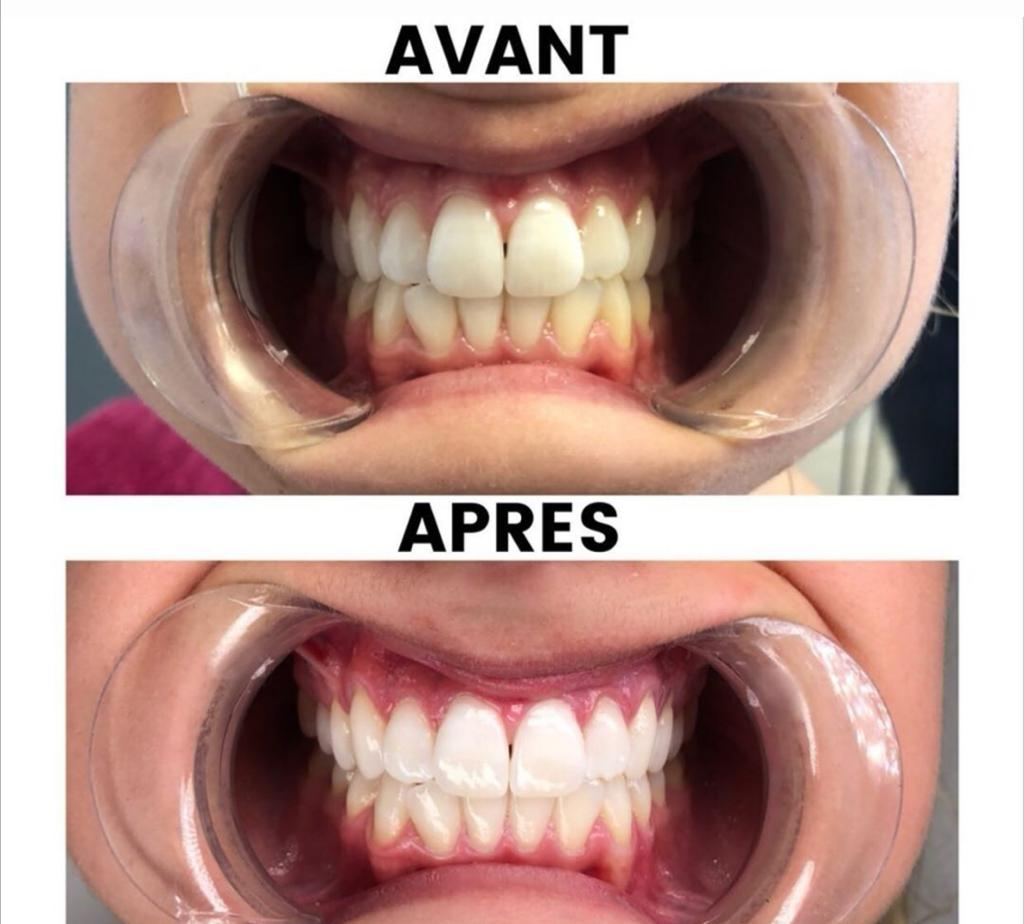 avant-après blanchiment dentaire naturel