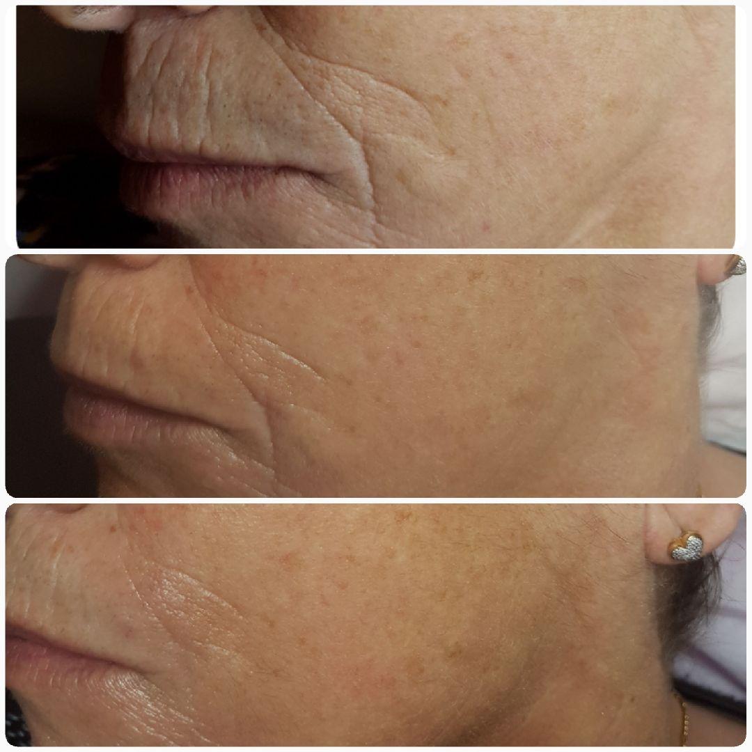 avant-après traitement anti-âge