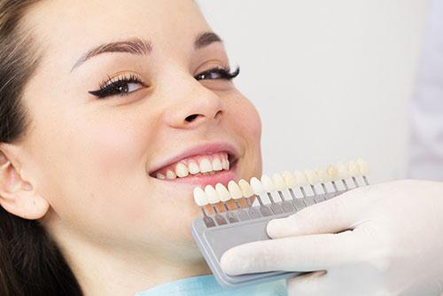 blanchiment dentaire sans peroxyde